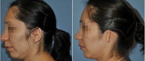 microtia-plastic-surgery-indore-india